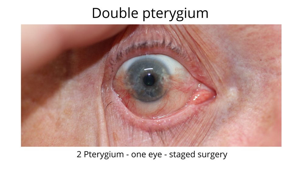 This image shows a double pterygium. Each pterygium is growing from each side of the eye and is starting to impact the cornea and will eventually impair vision.
